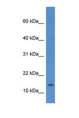 HIST1H2AE antibody Western blot of 8226 Cell lysate. Antibody concentration 1 ug/ml.  This image was taken for the unconjugated form of this product. Other forms have not been tested.