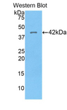Western blot of recombinant HIST1H2AG.  This image was taken for the unconjugated form of this product. Other forms have not been tested.