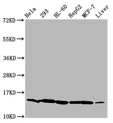 HIST1H2BN Antibody - Western Blot Positive WB detected in: Hela whole cell lysate, 293 whole cell lysate, HL-60 whole cell lysate, HepG2 whole cell lysate, MCF-7 whole cell lysate, Mouse liver tissue All Lanes: HIST1H2BC antibody at 0.92µg/ml Secondary Goat polyclonal to rabbit IgG at 1/50000 dilution Predicted band size: 14 KDa Observed band size: 14 KDa