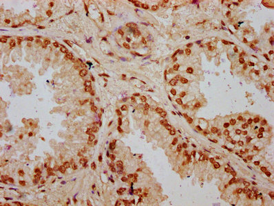 HIST1H2BN Antibody - Immunohistochemistry Dilution at 1:20 and staining in paraffin-embedded human prostate cancer performed on a Leica BondTM system. After dewaxing and hydration, antigen retrieval was mediated by high pressure in a citrate buffer (pH 6.0). Section was blocked with 10% normal Goat serum 30min at RT. Then primary antibody (1% BSA) was incubated at 4°C overnight. The primary is detected by a biotinylated Secondary antibody and visualized using an HRP conjugated SP system.
