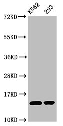 HIST1H2BN Antibody - Western Blot Positive WB detected in: K562 whole cell lysate, 293 whole cell lysate All Lanes: HIST1H2BC antibody at 0.72µg/ml Secondary Goat polyclonal to rabbit IgG at 1/50000 dilution Predicted band size: 14 KDa Observed band size: 14 KDa