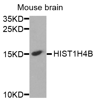HIST1H4B Antibody - Western blot analysis of extracts of mouse brain cells.