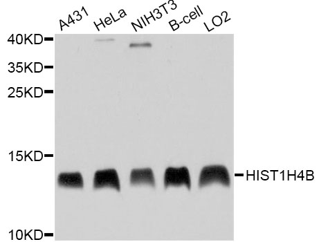 HIST1H4B Antibody - Western blot analysis of extracts of various cell lines, using HIST1H4B antibody at 1:1000 dilution. The secondary antibody used was an HRP Goat Anti-Rabbit IgG (H+L) at 1:10000 dilution. Lysates were loaded 25ug per lane and 3% nonfat dry milk in TBST was used for blocking. An ECL Kit was used for detection and the exposure time was 1s.