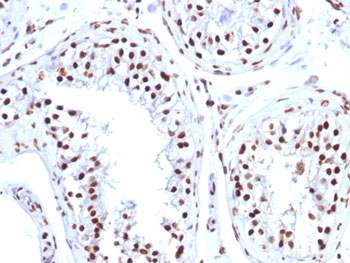 FFPE human testicular carcinoma tested with Histone H1 antibody (1415-1).  This image was taken for the unmodified form of this product. Other forms have not been tested.