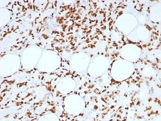 FFPE human angiosarcoma tested with Histone antibody (AE-4).  This image was taken for the unmodified form of this product. Other forms have not been tested.