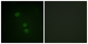 Immunofluorescence analysis of HeLa cells, using Histone H2B (Acetyl-Lys15) Antibody. The picture on the right is blocked with the synthesized peptide.