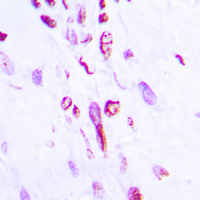 Histone H2B Antibody - Immunohistochemical analysis of Histone H2B (AcK5) staining in human lung cancer formalin fixed paraffin embedded tissue section. The section was pre-treated using heat mediated antigen retrieval with sodium citrate buffer (pH 6.0). The section was then incubated with the antibody at room temperature and detected using an HRP conjugated compact polymer system. DAB was used as the chromogen. The section was then counterstained with hematoxylin and mounted with DPX.