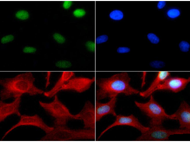 Histone H3 Antibody - Immunocytochemistry of rabbit Anti-Histone H3 [Monomethyl Lys4] Antibody. Tissue: HeLa cells. Fixation: 0.5% PFA. Antigen retrieval: Not required. Primary antibody: Histone H3 [Monomethyl Lys4] antibody at a 1:100 dilution for 1 h at RT. Secondary antibody: FITC secondary antibody at 1:10,000 for 45 min at RT. Localization: Histone H3 [Monomethyl Lys4] is nuclear and chromosomal. Staining: Histone H3 [Monomethyl Lys4] is expressed in green while the nuclei and aplpha-tubulin were coexpressed with DAPI (blue) and Phalloidin (red).