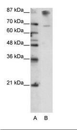 HKR1 Antibody - B: HepG2 Cell Lysate.  This image was taken for the unconjugated form of this product. Other forms have not been tested.