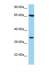 HLA-C antibody Western blot of 435S Cell lysate. Antibody concentration 1 ug/ml.  This image was taken for the unconjugated form of this product. Other forms have not been tested.