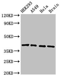 Positive Western Blot detected in HEK293 whole cell lysate, A549 whole cell lysate, Hela whole cell lysate, Mouse brain tissue. All lanes: HLA-C antibody at 3.4 µg/ml Secondary Goat polyclonal to rabbit IgG at 1/50000 dilution. Predicted band size: 41 KDa. Observed band size: 41 KDa