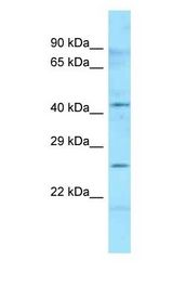 HLA-DMB Antibody - HLA-DMB antibody Western Blot of Human Placenta. Antibody dilution: 1 ug/ml.  This image was taken for the unconjugated form of this product. Other forms have not been tested.