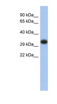 HLA-DPA1 antibody Western blot of Fetal Thymus lysate. This image was taken for the unconjugated form of this product. Other forms have not been tested.