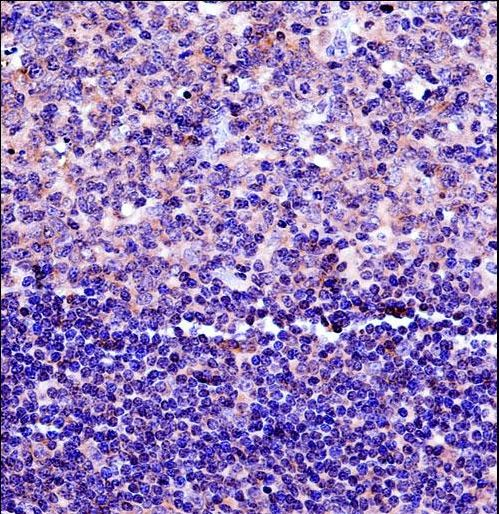 HLA-DPB1 Antibody immunohistochemistry of formalin-fixed and paraffin-embedded human tonsil tissue followed by peroxidase-conjugated secondary antibody and DAB staining.