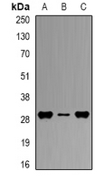 HLA-DPB1 Antibody - Western blot analysis of HLA-DPB1 expression in THP1 (A); mouse spleen (B); mouse liver (C) whole cell lysates.