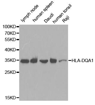 Western blot analysis of extracts of various cell lines, using HLA-DQA1 antibody.