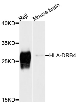 Western blot analysis of extracts of various cell lines, using HLA-DRB4 antibody at 1:1000 dilution. The secondary antibody used was an HRP Goat Anti-Rabbit IgG (H+L) at 1:10000 dilution. Lysates were loaded 25ug per lane and 3% nonfat dry milk in TBST was used for blocking. An ECL Kit was used for detection and the exposure time was 1s.