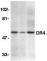 Western blot analysis of DR4 in HeLa (H), K562 (K), and Jurkat (J) whole cell lysate with DR4 antibody at 2ug/ml.