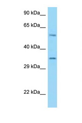 HLA-E antibody Western blot of U937 Cell lysate. Antibody concentration 1 ug/ml.  This image was taken for the unconjugated form of this product. Other forms have not been tested.