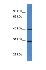HM13 antibody Western blot of Mouse Spleen lysate. Antibody concentration 1 ug/ml. This image was taken for the unconjugated form of this product. Other forms have not been tested.