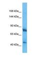 Western blot of HMGCR Antibody with human Fetal Lung lysate.  This image was taken for the unconjugated form of this product. Other forms have not been tested.