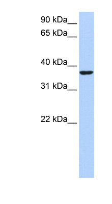 HMG20B / BRAF35 antibody LS-C110071 Western blot of HepG2 cell lysate.  This image was taken for the unconjugated form of this product. Other forms have not been tested.