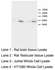 HMGB4 Antibody -  This image was taken for the unconjugated form of this product. Other forms have not been tested.