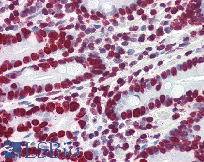 Anti-HMGA1 antibody IHC of human small intestine. Immunohistochemistry of formalin-fixed, paraffin-embedded tissue after heat-induced antigen retrieval. Antibody concentration 4 ug/ml.