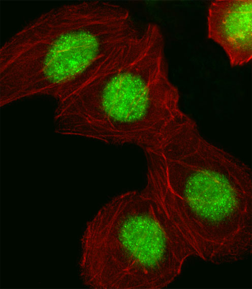 Fluorescent image of A549 cell stained with HMGA1 Antibody. A549 cells were fixed with 4% PFA (20 min), permeabilized with Triton X-100 (0.1%, 10 min), then incubated with HMGA1 primary antibody (1:25, 1 h at 37°C). For secondary antibody, Alexa Fluor 488 conjugated donkey anti-rabbit antibody (green) was used (1:400, 50 min at 37°C). Cytoplasmic actin was counterstained with Alexa Fluor 555 (red) conjugated Phalloidin (7units/ml, 1 h at 37°C). HMGA1 immunoreactivity is localized to Nucleus significantly.