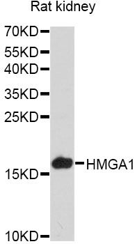 Western blot analysis of extracts of various cell lines, using HMGA1 antibody at 1:3000 dilution. The secondary antibody used was an HRP Goat Anti-Rabbit IgG (H+L) at 1:10000 dilution. Lysates were loaded 25ug per lane and 3% nonfat dry milk in TBST was used for blocking. An ECL Kit was used for detection and the exposure time was 90s.