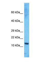 Western blot of HMGA1 Antibody with human Jurkat Whole Cell lysate.  This image was taken for the unconjugated form of this product. Other forms have not been tested.