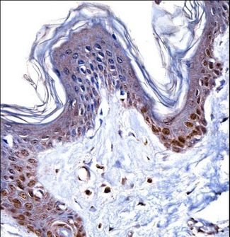 HMGN1 / HMG14 Antibody - HMGN1 Antibody immunohistochemistry of formalin-fixed and paraffin-embedded human skin tissue followed by peroxidase-conjugated secondary antibody and DAB staining.
