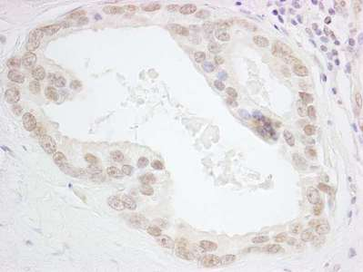 Detection of Human HMGN3 by Immunohistochemistry. Sample: FFPE section of human prostate carcinoma. Antibody: Affinity purified rabbit anti-HMGN3 used at a dilution of 1:1000 (0.2 Detection: DAB.