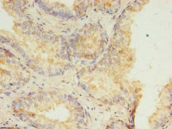 Immunohistochemistry of paraffin-embedded human prostate cancer using antibody at 1:100 dilution.