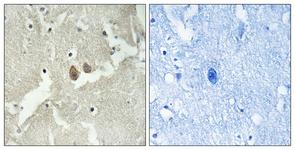 IHC of paraffin-embedded human brain tissue, using NSG2 Antibody. The picture on the right is treated with the synthesized peptide.