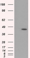 HEK293T cells were transfected with the pCMV6-ENTRY control (Left lane) or pCMV6-ENTRY MTRF1L (Right lane) cDNA for 48 hrs and lysed. Equivalent amounts of cell lysates (5 ug per lane) were separated by SDS-PAGE and immunoblotted with anti-MTRF1L.