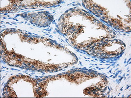 IHC of paraffin-embedded prostate tissue using anti-MTRF1L mouse monoclonal antibody. (Dilution 1:50).