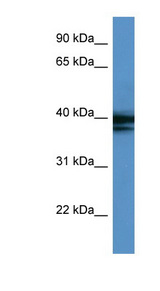 HNRNPAB / HNRPAB antibody Western blot of COLO205 cell lysate. This image was taken for the unconjugated form of this product. Other forms have not been tested.