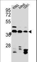HNRNPC Antibody western blot of Jurkat,K562,U251 cell line lysates (35 ug/lane). The HNRNPC antibody detected the HNRNPC protein (arrow).