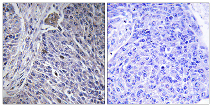 Immunohistochemistry analysis of paraffin-embedded human lung carcinoma tissue, using HNRPDL Antibody. The picture on the right is blocked with the synthesized peptide.