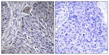 HNRNPDL / hnRNP D Antibody - Immunohistochemistry analysis of paraffin-embedded human lung carcinoma tissue, using HNRPDL Antibody. The picture on the right is blocked with the synthesized peptide.