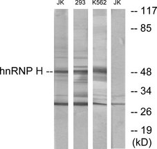 Western blot analysis of lysates from Jurkat, 293, and K562 cells, using hnRNP H Antibody. The lane on the right is blocked with the synthesized peptide.