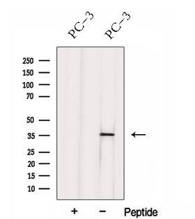 HNRNPH3 / hnRNP H3 Antibody - Western blot analysis of extracts of PC-3 cells using HNRNPH3 antibody. The lane on the left was treated with blocking peptide.