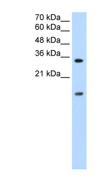 HNRNPUL1 / HNRPUL1 antibody LS-B1537 Western blot of Jurkat lysate.  This image was taken for the unconjugated form of this product. Other forms have not been tested.
