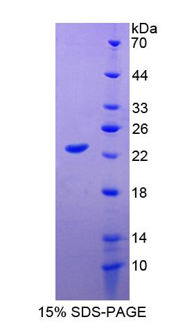 APOM / Apolipoprotein M Protein - Recombinant Apolipoprotein M By SDS-PAGE