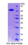 IL-10 Protein - Recombinant Interleukin 10 By SDS-PAGE
