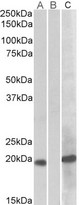 HEK293 lysate (10ug protein in RIPA buffer) overexpressing Human HOXA1 (RC222721) with C-terminal MYC tag probed with (1ug/ml) in Lane A and probed with anti-MYC Tag (1/1000) in lane C. Mock-transfected HEK293 probed (1mg/ml) in Lane