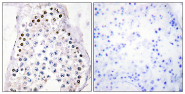 HOXA1/HOXB1/HOXD1 Antibody - Immunohistochemistry analysis of paraffin-embedded human testis tissue, using HOXA1/B1/D1 Antibody. The picture on the right is blocked with the synthesized peptide.