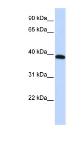 HOXA10 antibody Western blot of HepG2 cell lysate. This image was taken for the unconjugated form of this product. Other forms have not been tested.