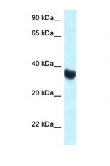HOXA10 antibody Western blot of Rat Muscle lysate. Antibody concentration 1 ug/ml.  This image was taken for the unconjugated form of this product. Other forms have not been tested.